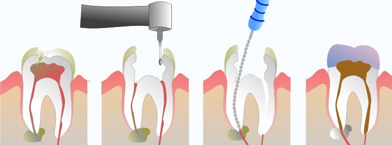 Processo de Endodontia